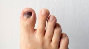 blessure course à pied